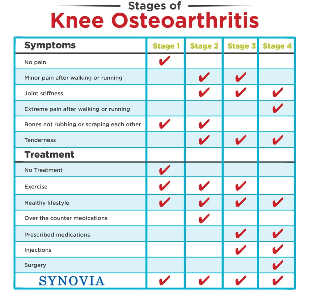 Synovia reduce knee osteoarthritis in all stages no more pain by Bioparanta